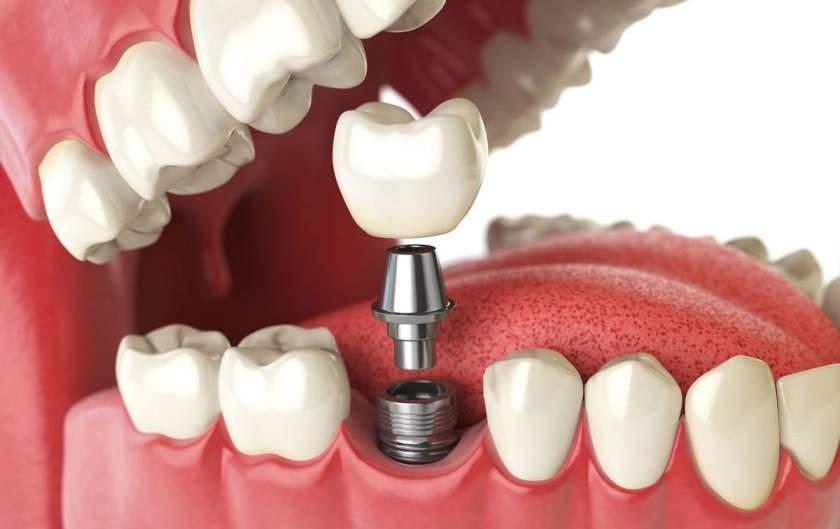 Ce este necesar sa stim despre implanturile dentare?
