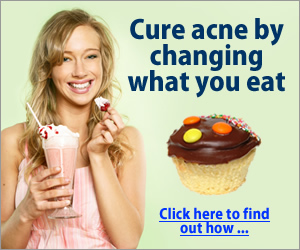 Avoid sugar for stopping the acne