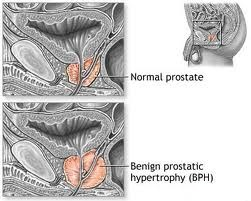 Benign Prostatic Hyperplasia (BPH) Symptoms, Diagnosis and Treatment Options